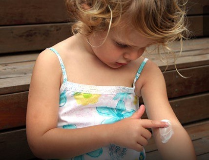 Childhood Eczema – 10 Top Tips How To Beat It